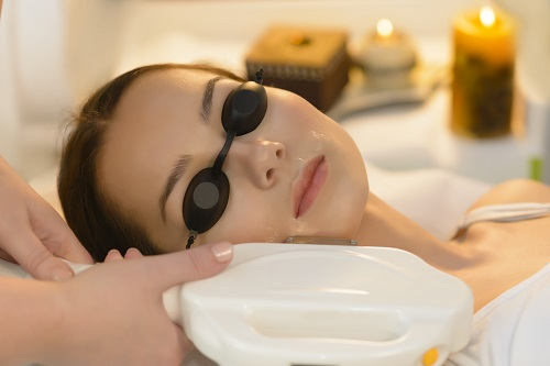 IPL rejuvenation facial